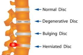 Disc Disorders